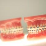 orthodontics-braces-straight-teeth-footscray-crooked-health